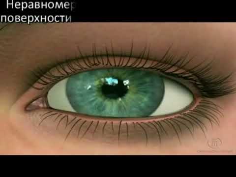 Восстановление зрения отзывы людей