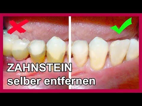 ▶︎ Zahnbelag Zahnstein selber entfernen mit diesen Hausmittel - so gehts