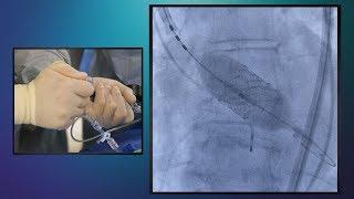 Transcatheter Aortic Valve Replacement (TAVR) – Essentia Health