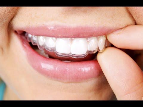 Invisalign Dentist - Invisalign Process & Care