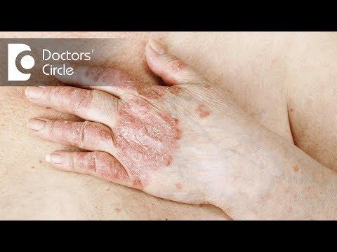 Chi ha curato la dermatite atopic al neonato
