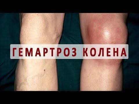 Боль в плечевого сустава мазь от боли