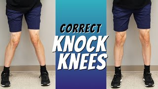 Top 5 Ways to Correct Knock Knees with Exercise Etc.