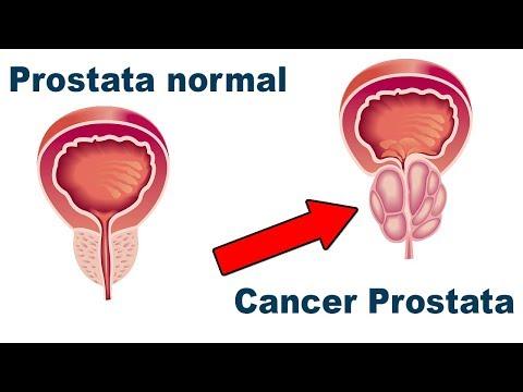 Receta para la prevención de la prostatitis