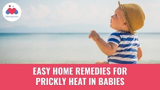 5 Easy Home Remedies For Prickly Heat In Babies   Baby's Prickly Heat