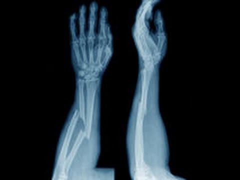 Dureri musculare și articulare cu infecții