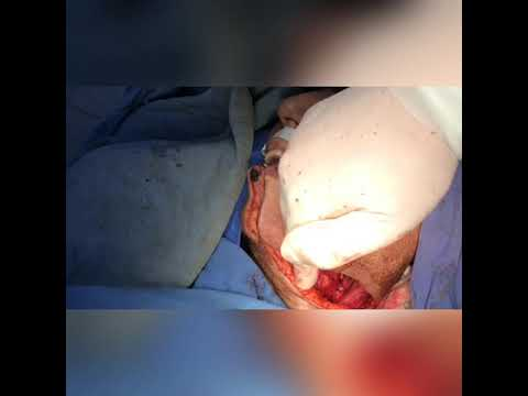 Hpv genital lesion