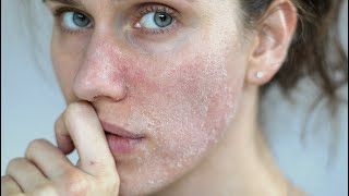 DRY SKIN: 3 Best ingredients For Dry Cracked Skin