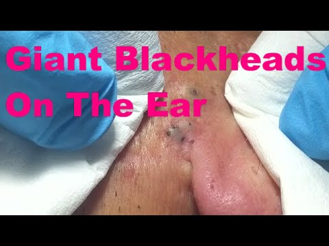 Josefa Reina: Giant Blackheads on the Ear (Part 1)