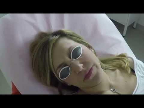 Trattamento video di un onikhomikoz di unghie