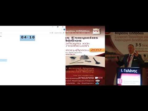 Γαλάνης Ι - Είδη πλεγμάτων στην αντιμετώπιση της βουβωνοκήλης ανοικτή και λαπαροσκοπική heav