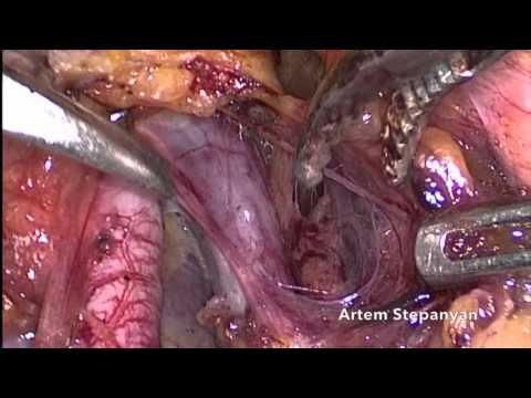 Laparoscopic Type C1 Radical Hysterectomy