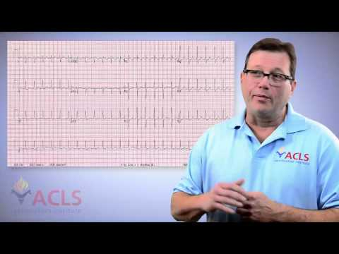 Video ACLS Mailbox - Adenosine for Ventricular Tachycardia by ACLS Certification Institute