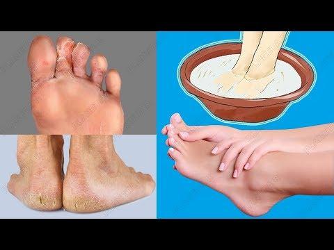 El hongo en los pies el calcetín