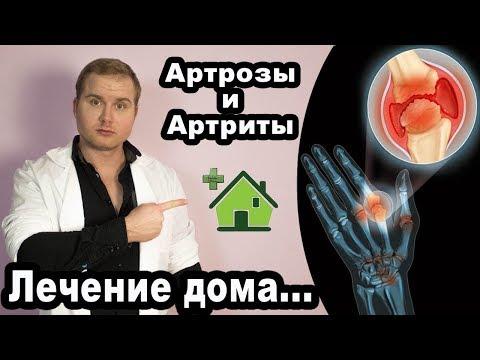 Лечение суставов артрозов и артритов дома