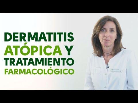 Como conocer la psoriasis sobre la cabeza
