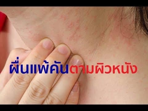 โรคสะเก็ดเงิน Lipikar