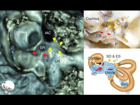 Video Can saccular otoconia cause Ménière's disease? - Hideo Yamane