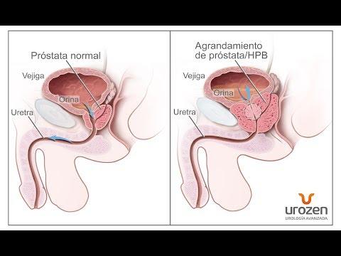 Masajes para la próstata