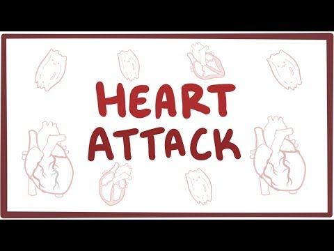 Heart attack (acute myocardial infarction) Osmosis (Video)