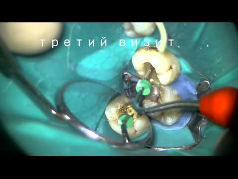 Зуб 4.7 хр. периодонтит  лечение под микроскопом