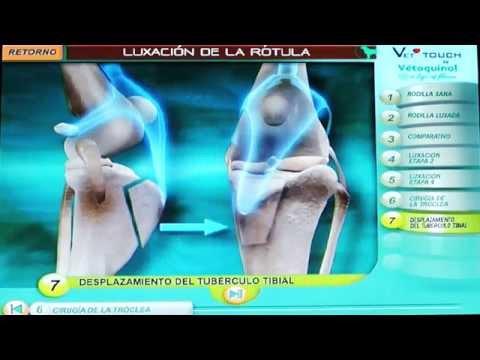 Que necesita para obtener una cita para la cirugía de reemplazo de rodilla