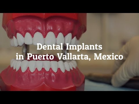 Popular-Dental-Implants-Procedure-at-Puerto-Vallarta-Mexico