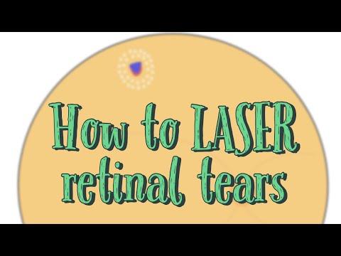 Laserowanie przedarć siatkówki - materiał edukacyjny