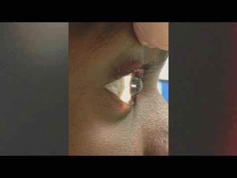 A látás helyreállítása fáj