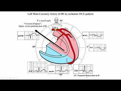 Presión arterial alta tener hipotensor