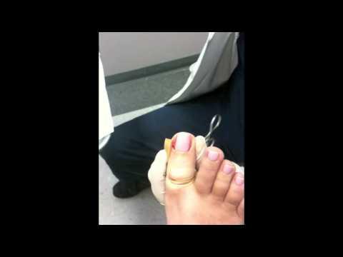 Zabieg wrośniętego paznokcia - trwałe usunięcie