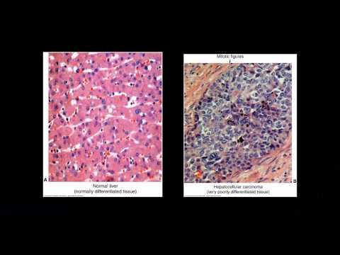 Hpv virus ohne warzen