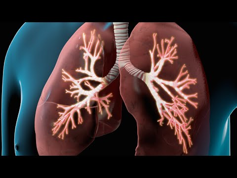 Video COPD | Chronic Obstructive Pulmonary Disease | Nucleus Health