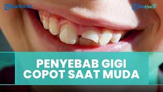 Penyebab Gigi Copot saat Usia Muda, Ini Penjelasan dari Dokter Gigi