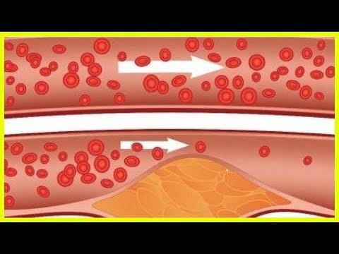 Die Ernährung von schwangeren Frauen mit Diabetes