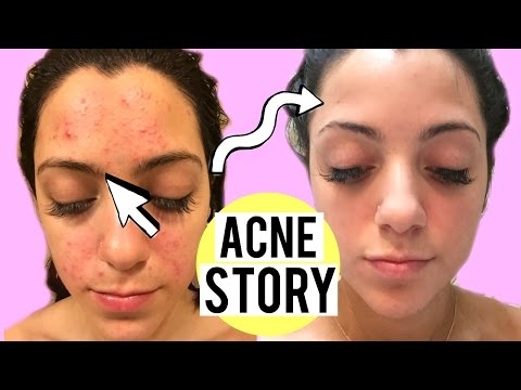 My Acne Story: Clogged Pores To Clear Skin | How I Cleared My Skin Mp3
