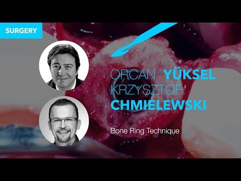 Bone Ring Technique surgery
