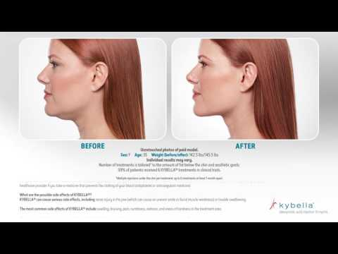 Removing the double chin | Klinika Mediestetik