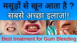 BLEEDING GUMS CAUSES , TREATMENT & PREVENTION ( HINDI ) # DENTAL AWARENESS. - DENTAL