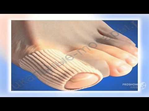 Операция по удалению косточки на большом пальце ноги цены