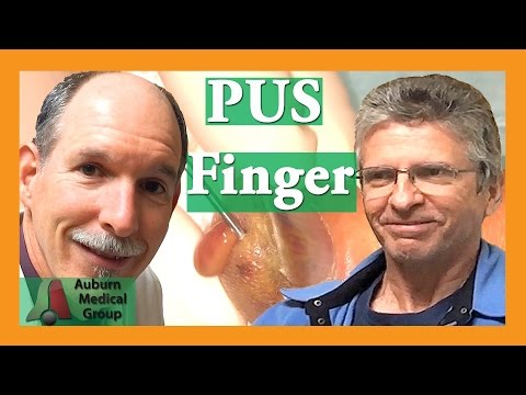 Wie brüchig slojaschtschijessja die Nägel zu heilen