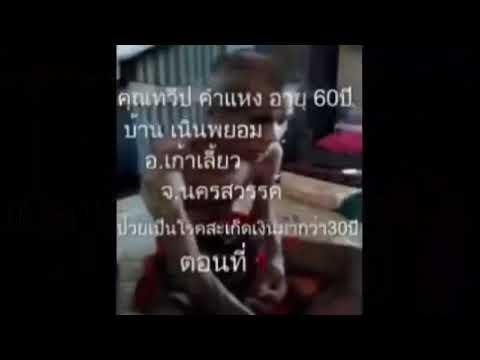กลาก giperkeratoticheskaya Palmar-ฝ่าเท้า