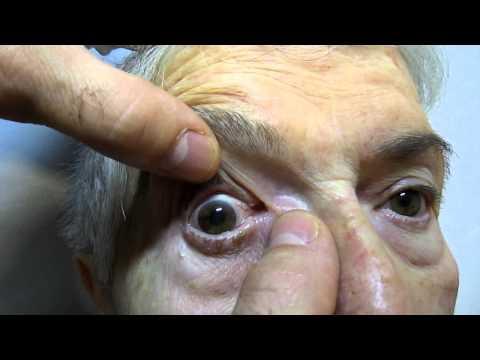 Se è possibile spalmare con unguento geparinovy sotto occhi cerchi scuri