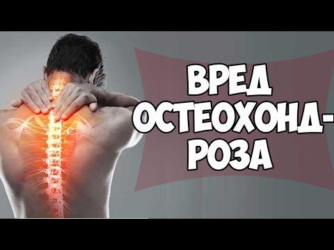 Мази при артритах и артрозах коленного сустава