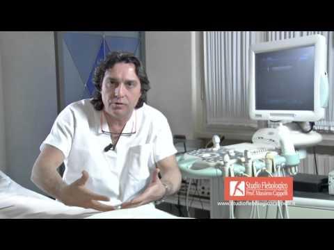 Rimedi di gente allatto di trattamento di posizione di varicosity