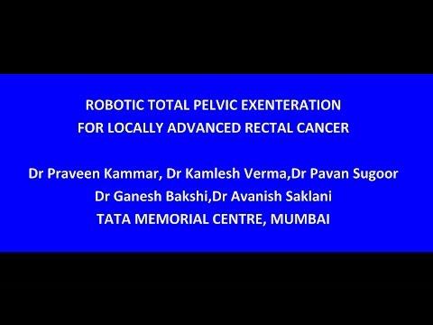 Robotic Total Pelvic Exenteration for Locally Advanced Rectal Cancer