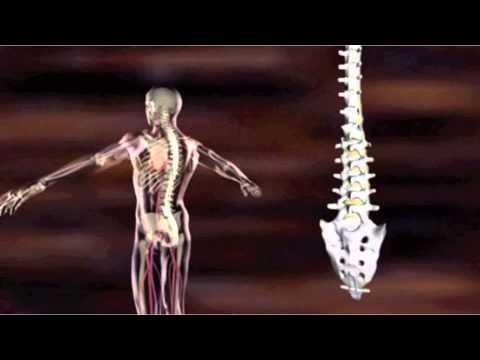 Schmerzen im Nacken in der Sitzposition