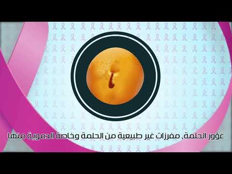 سرطان الثدي والفحص الطبي