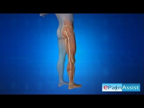 Longuent pour le tonus des muscles
