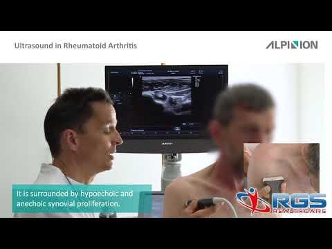 Ízületi és ízületi gyulladások kezelése